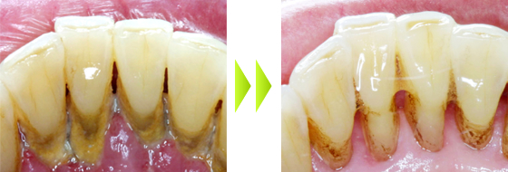 歯周病治療の治療経過